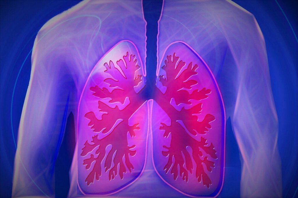 COPD revalidatie afbeelding longen